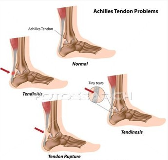 achilles-tendon-problems -k7993581