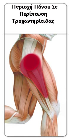 trochanteric-bursitis-pain-pattern